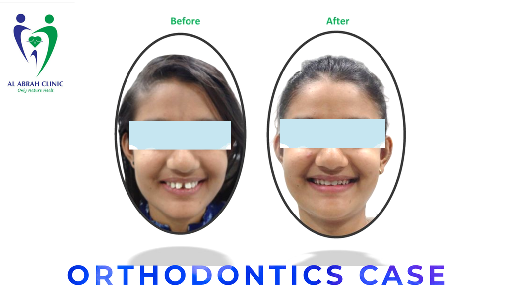 Orthodontics in deira