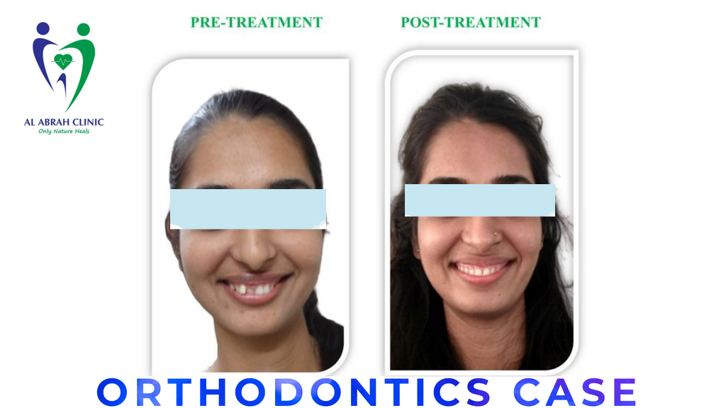 Best Orthodontist in Deira