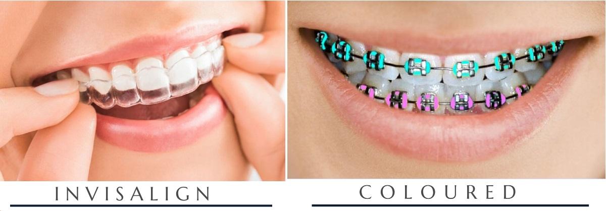 Lingual Braces and Coloured braces