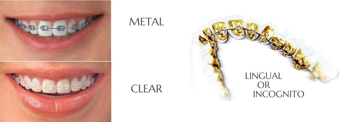 Orthodontist Braces and invisalign