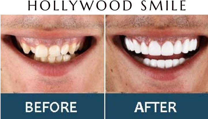 Hollywood smile at abrah clinic in Dubai