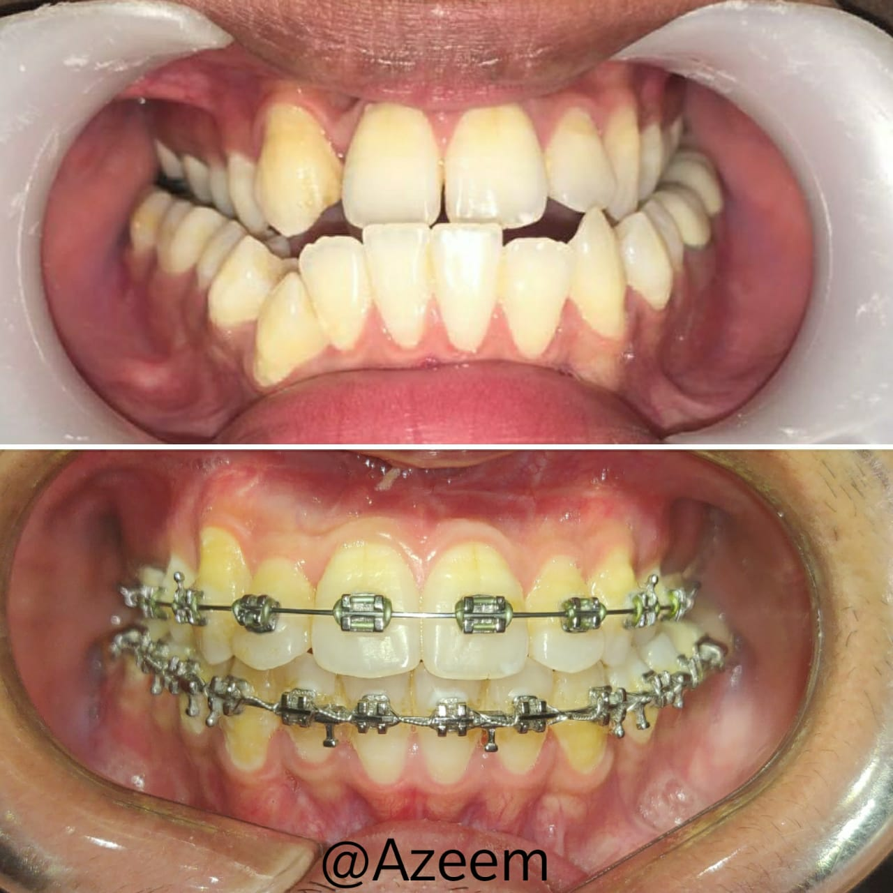 Braces in Dubai | Before and after
