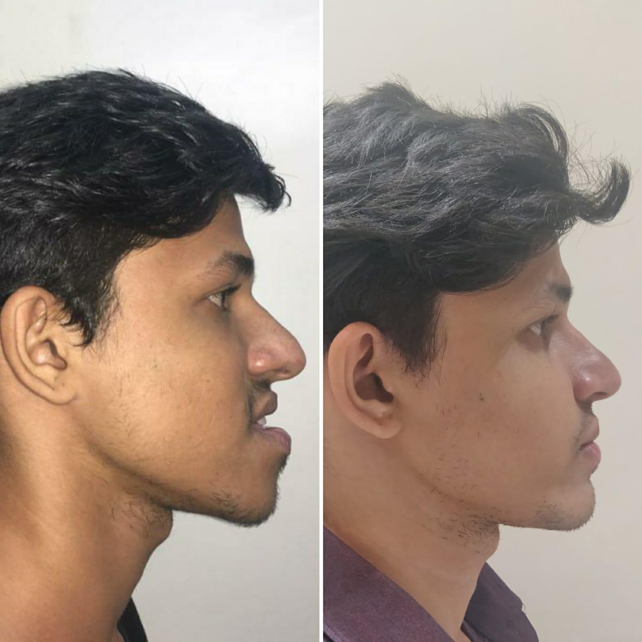 Othodontist in dubai