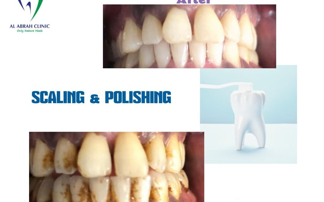 Teeth Cleaning in Dubai | Scaling & Polishing in Dubai