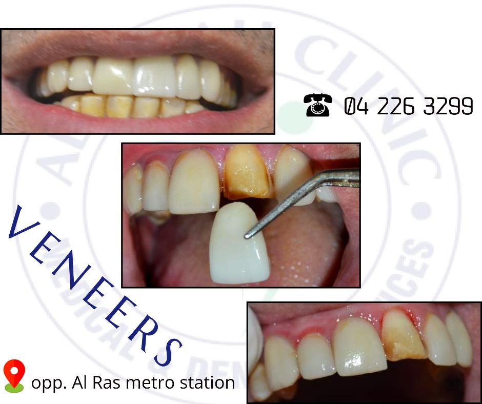 Dental Veneers in Dubai