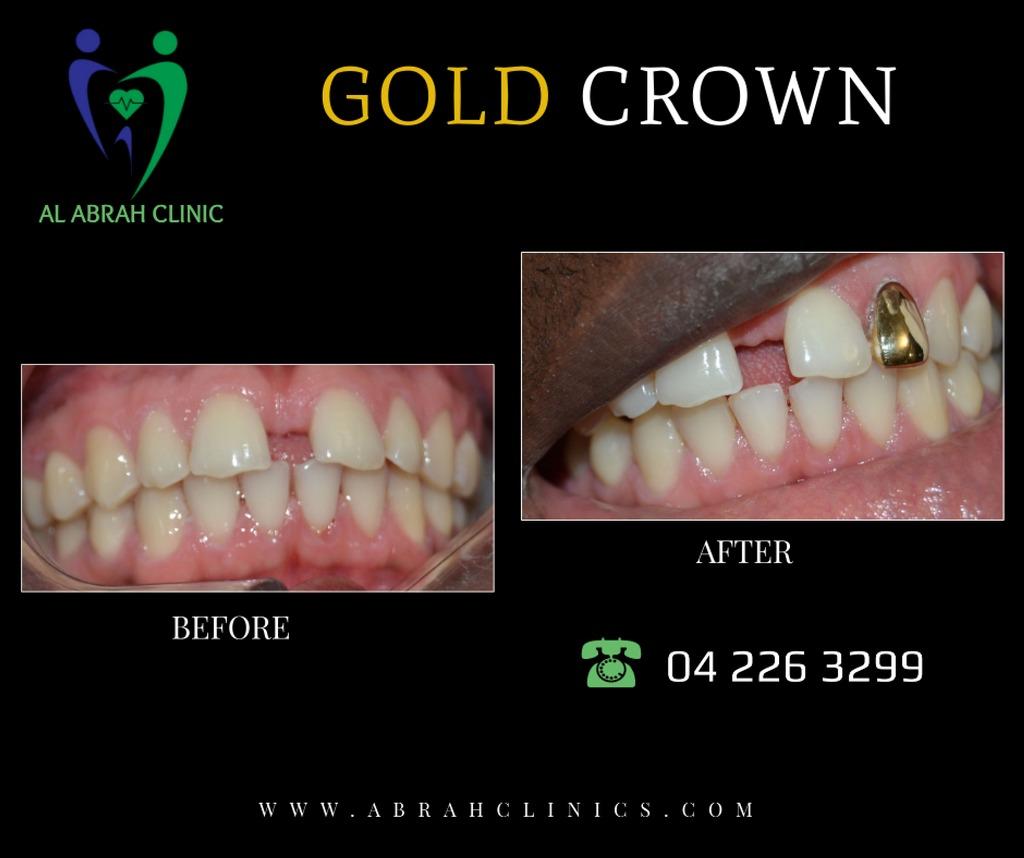 Gold teeth Crown