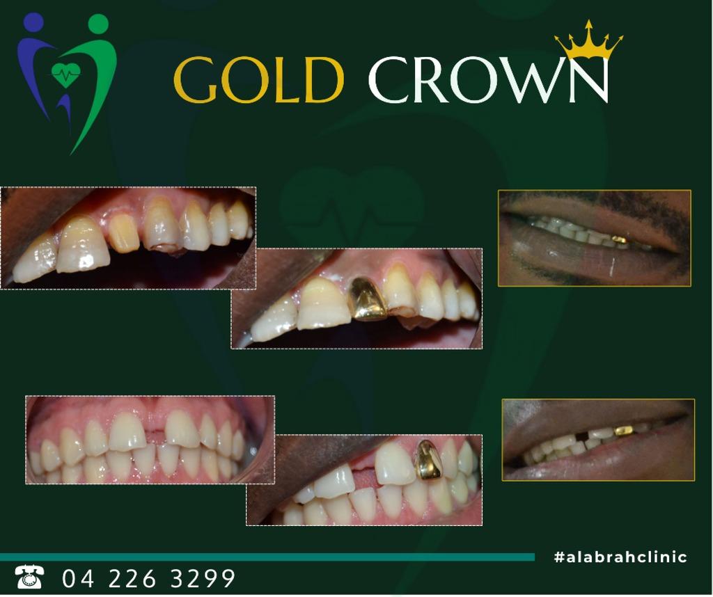 Gold Teeth Crown in Dubai