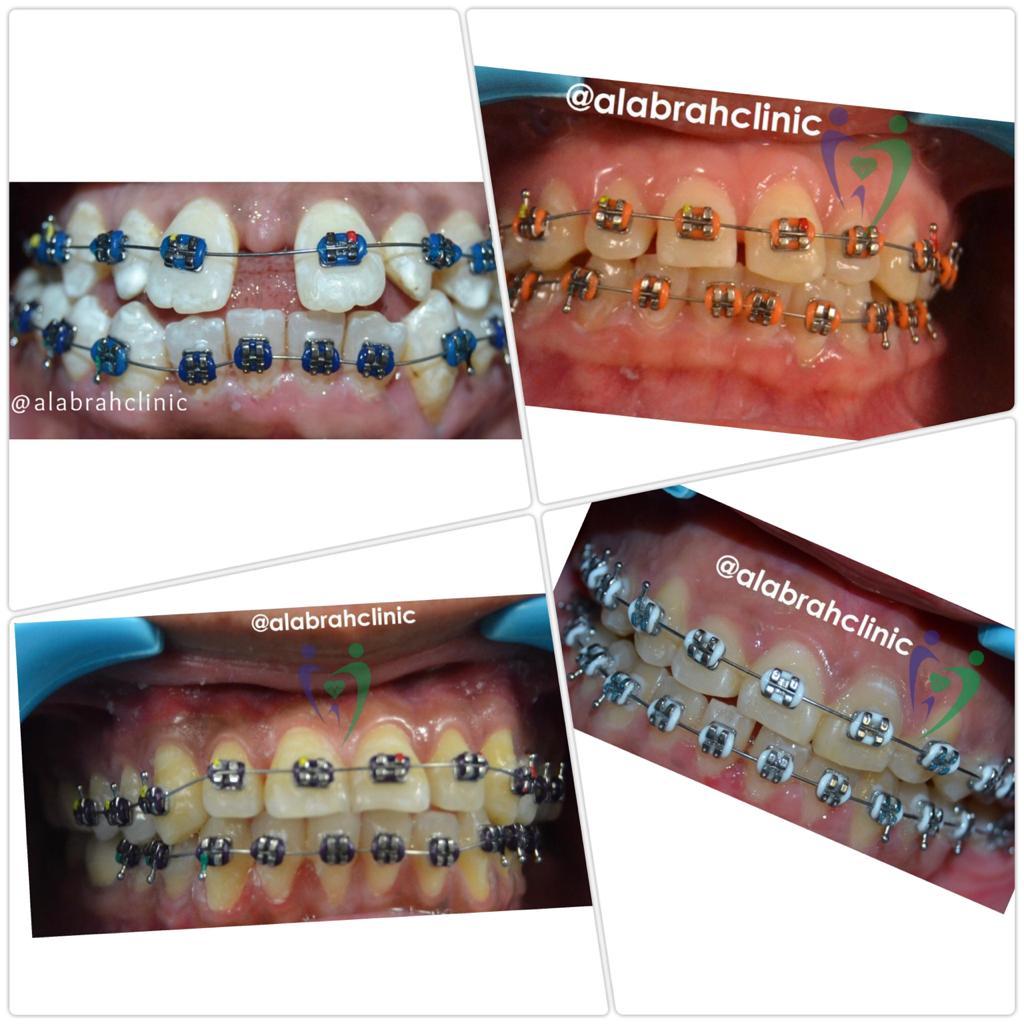 Orthodontist in Deira Dubai
